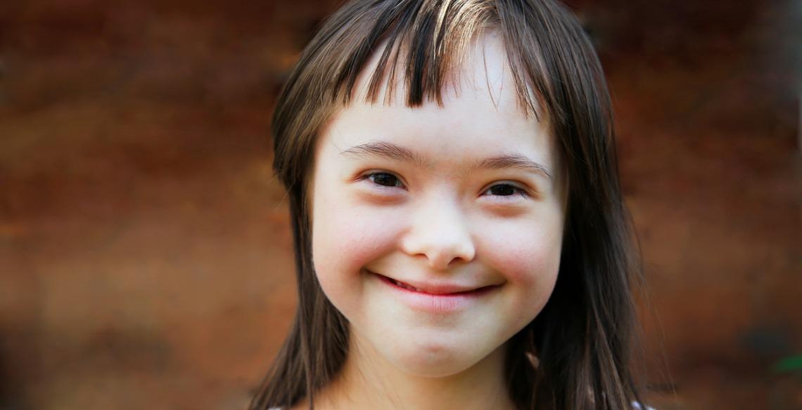 Síndrome de Down: O amor não conta cromossomos!